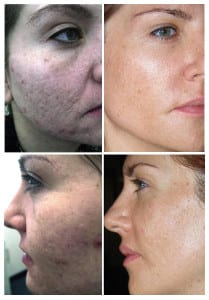 Boulder Microneedling before after
