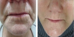 Boulder Microneedling before & after
