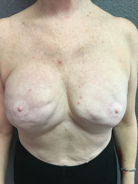 Areola Repigmentation Before