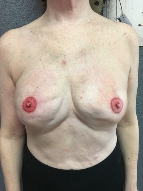 Areola Repigmentation After