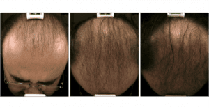 Hair-Regrowth-Boulder Microneedling