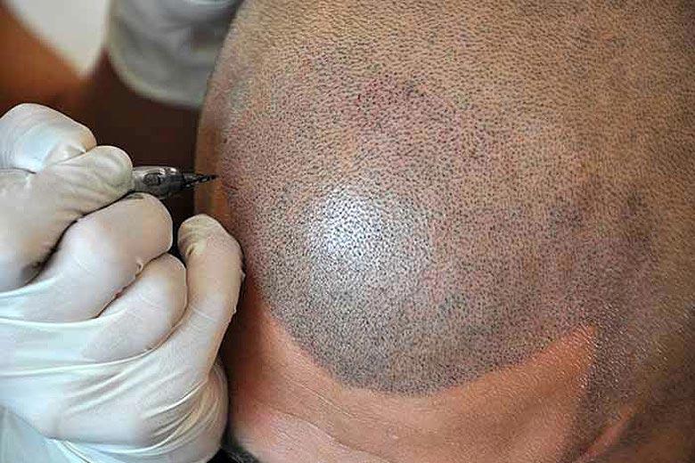 Skincare Boulder, Colorado | Facials, Permanent Makeup - The